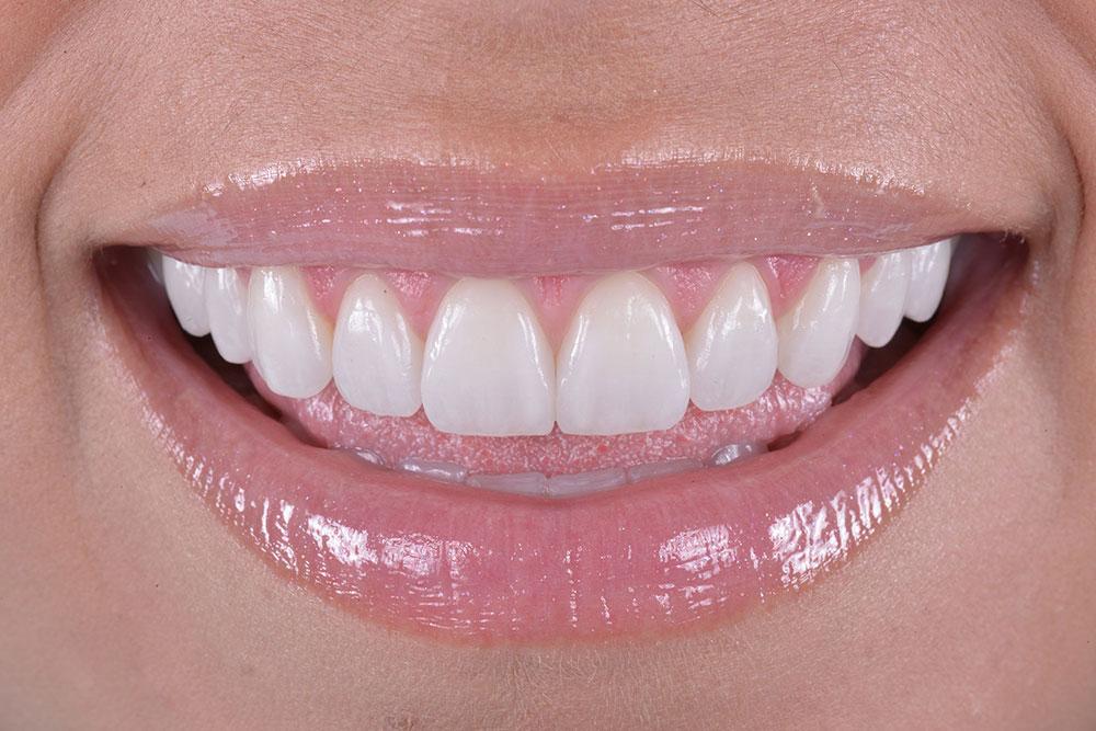 agenesia dentale ereditariale