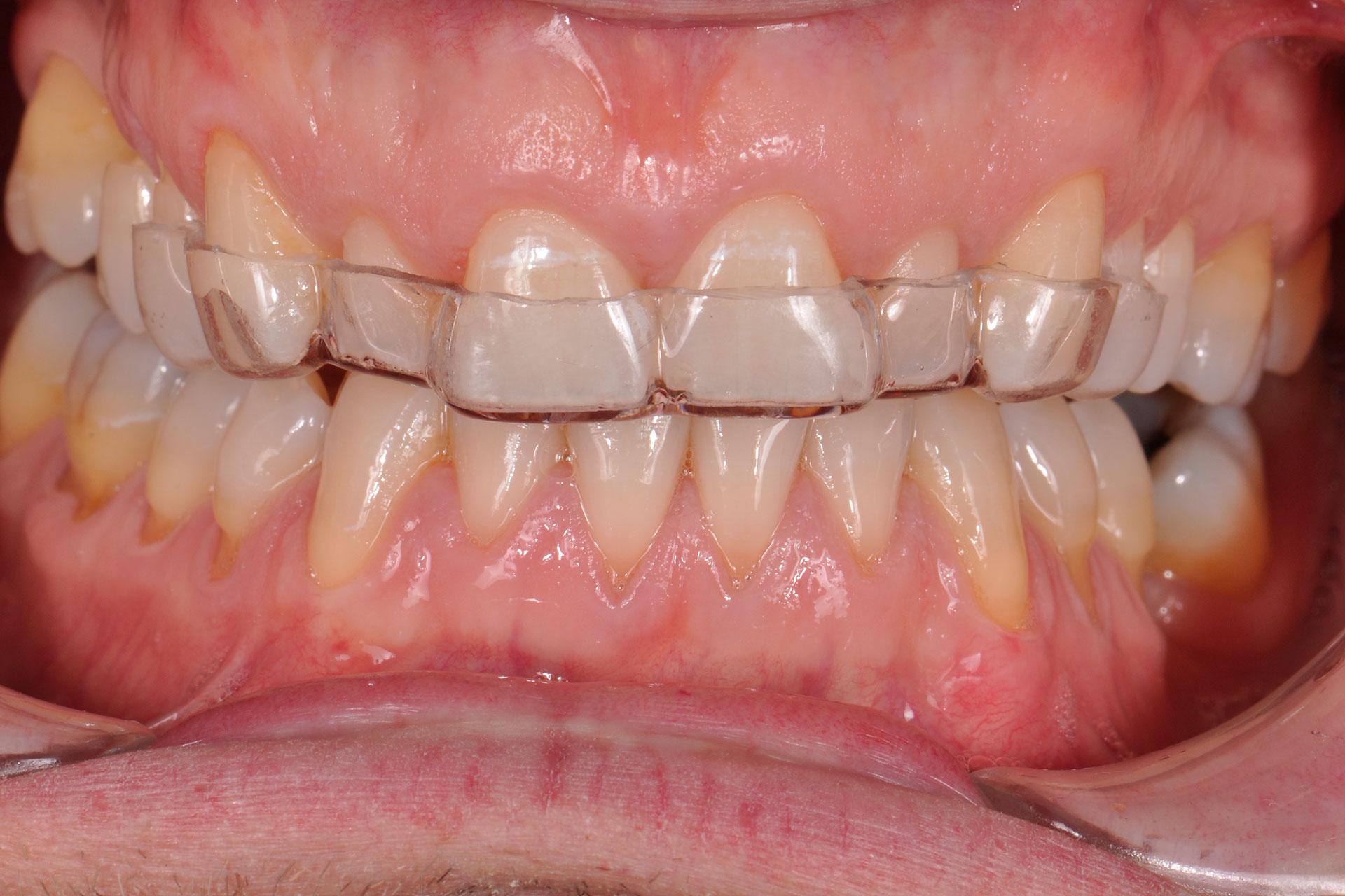 tratamiento tratamiento periodontal precio