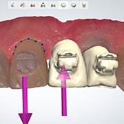 mejor ortodoncia Barcelona