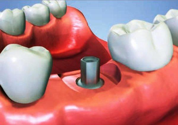 Infeccion implante dental Barcelona