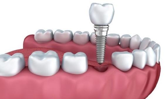 Implantes odontologicos Barcelona
