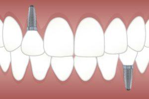 Implante odontologico Barcelona