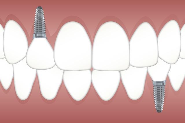 centro odontologico barcelona
