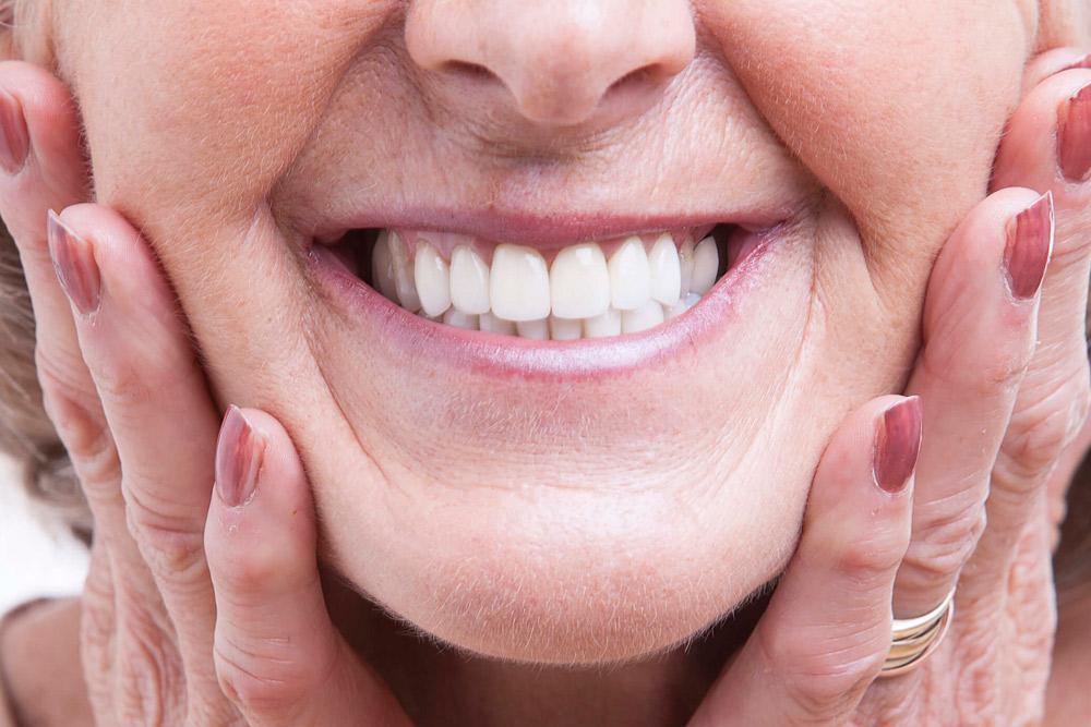 presupuesto de implantes dentales en Barcelona