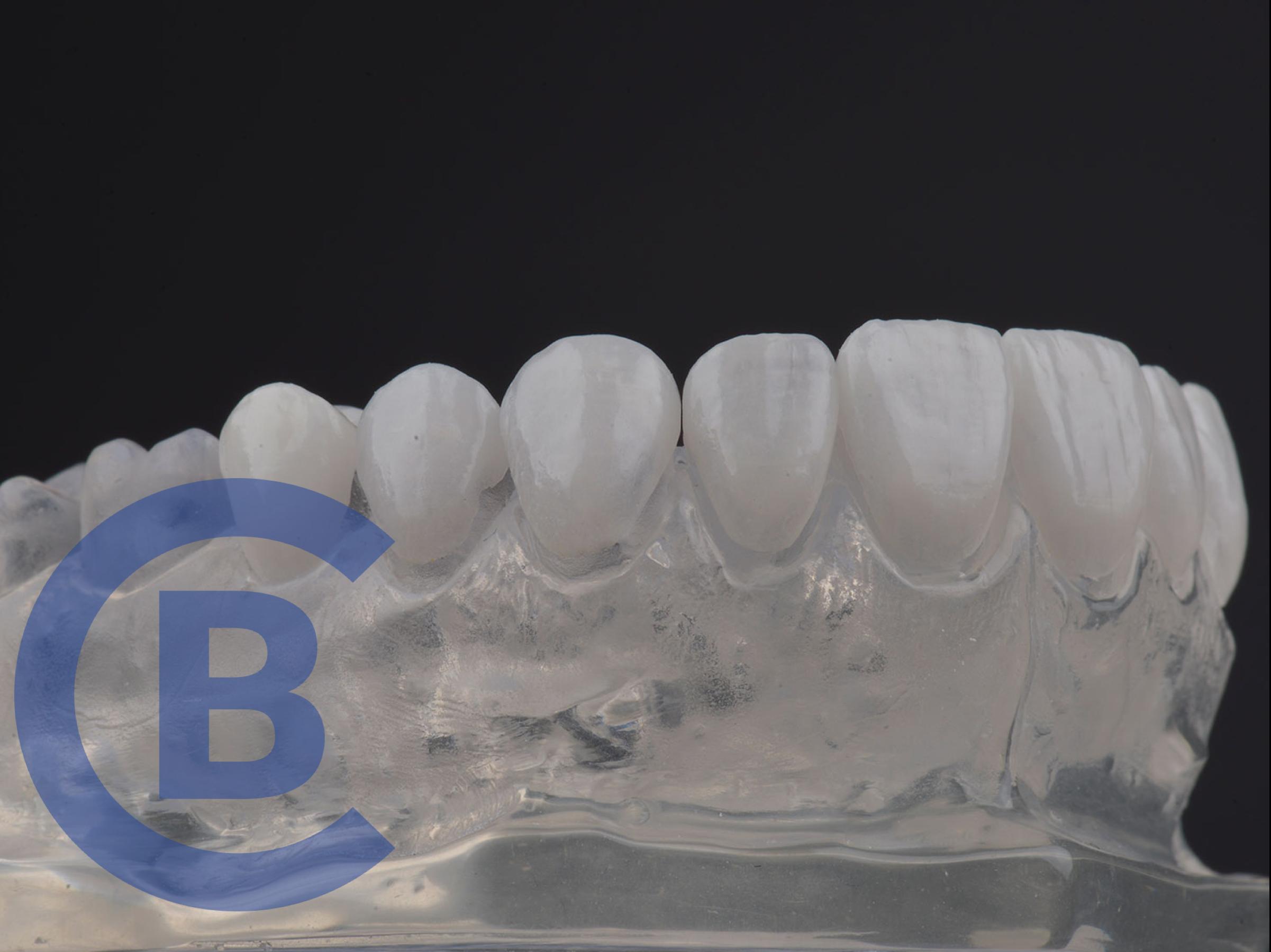 carilles dentals
