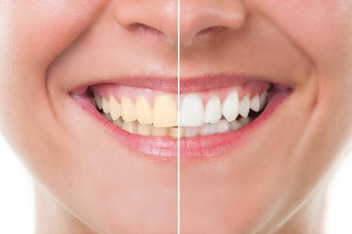 clínica de blanqueamiento dental en Barcelona