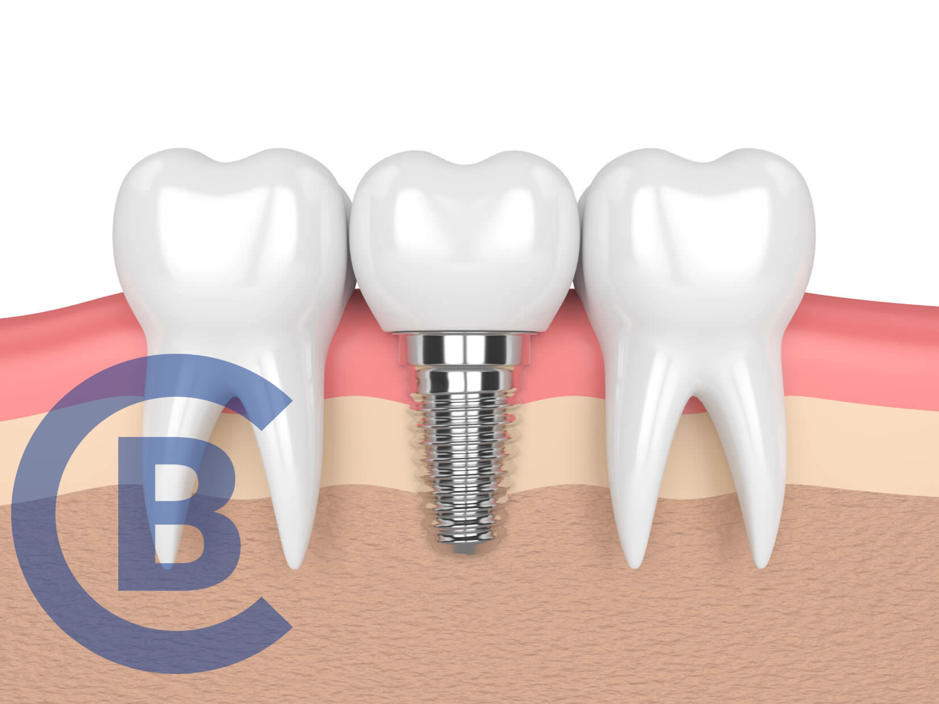 root canal vs dental implant